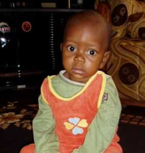 Simon is 1 year old. His parents were informed that Simon would not have long to live. He was born with congenital heart defect and there are no facilities in Zambia to perform heart surgery.