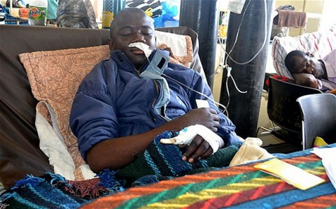 Kelvin Katoka in his hospital bed at the Kitwe Central Hospital Photo- AFP