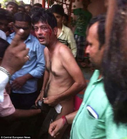 Suresh Kumar is left bleeding and in shock after being beaten and castrated after locals in Ganganagar, in India's northwestern Rajasthan state, caught him trying to rape a teenage girl