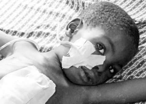A Typhoid Fever victim in Africa