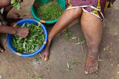 Lymphatic Filariasis (LF) commonly known as elephantiasis