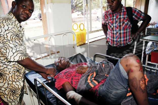 UNIVERSITY of Zambia student Lizwe Njobvu who suffered injuries when students ran amok demanding payment of delayed meal allowances is making steady recovery in hospital in 2014 - credit Daily Mail